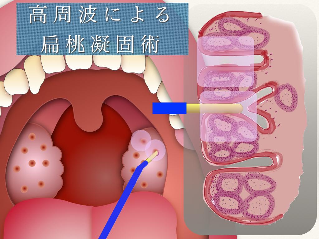 扁桃凝固術|あさひ町榊原耳鼻咽喉科医院|山形市の耳鼻科