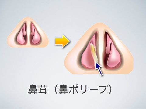 鼻茸 実は鼻茸というのは鼻や副鼻腔の粘膜の一部が炎症を繰り返すことによって、腫れやむくみが戻らな